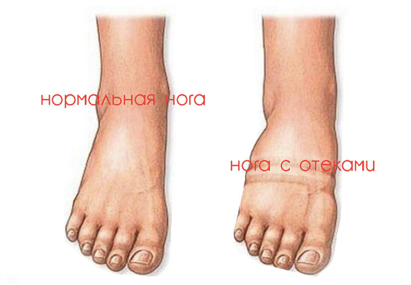 Почему опухают ноги при сахарном диабете