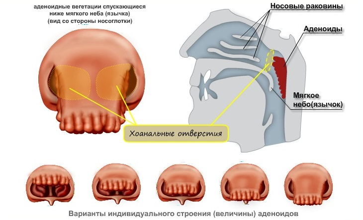 Лечение аденоидов в домашних условиях отзывы