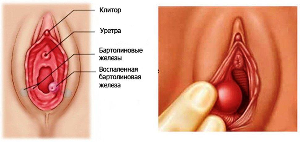 chto-znachit-vaginalniy-osmotr