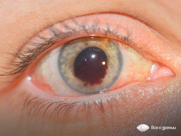 фото кровоизлияния в сетчатку глаза