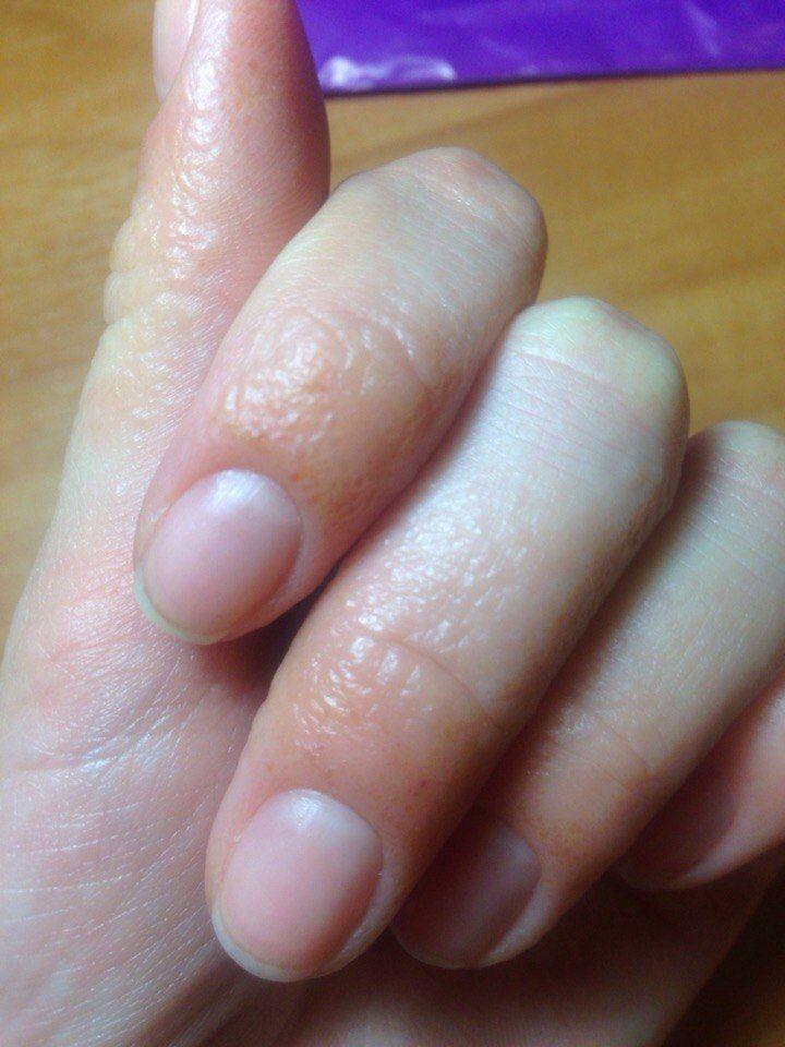 Аллергия при нарощенных ногтях