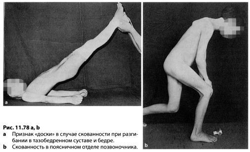 утром скованность тазобедренных суставов что делать