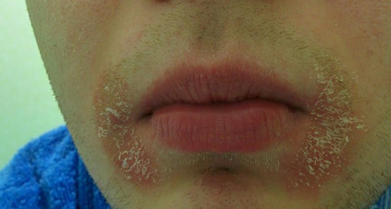 Шелушение на веках и губах