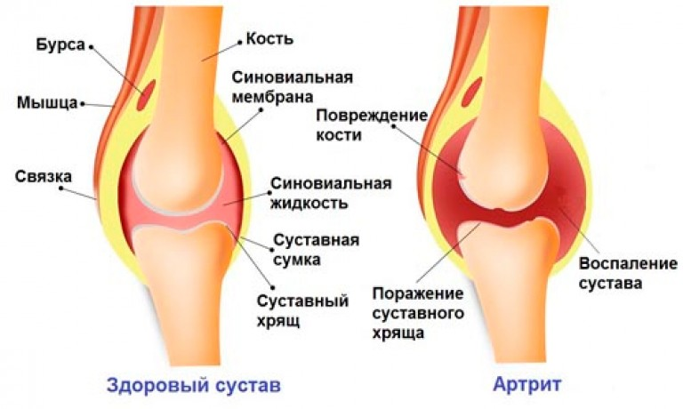 Как лечить воспаление коленного сустава артрит