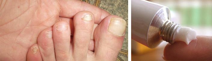 Грибок ногтей как распознать