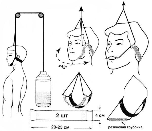 Как сделать петлю глиссона в домашних условиях