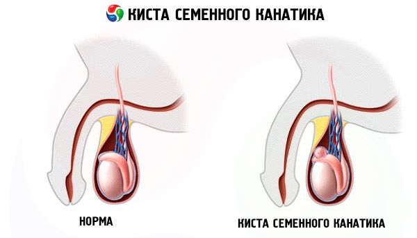 testicle pain reason