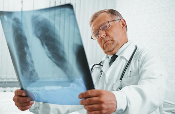 Переболевших COVID-19предупредили ориске туберкулеза