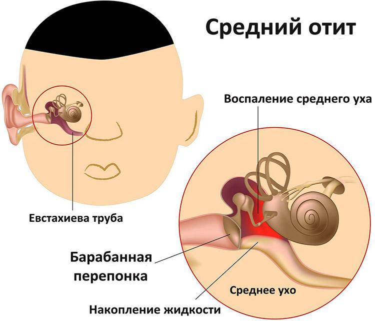 Болит ухо у ребенка температура высокая