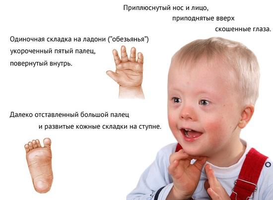 Грипп - симптомы, осложнения, причины
