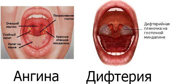 У ребенка болит горло: причины как лечить лекарства