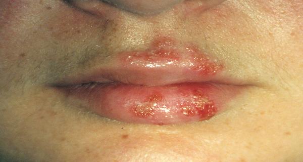 Herpes dating louisiana