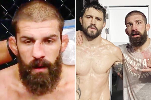 «Гребаный дикарь». Боец MMA вправил нос во время боя