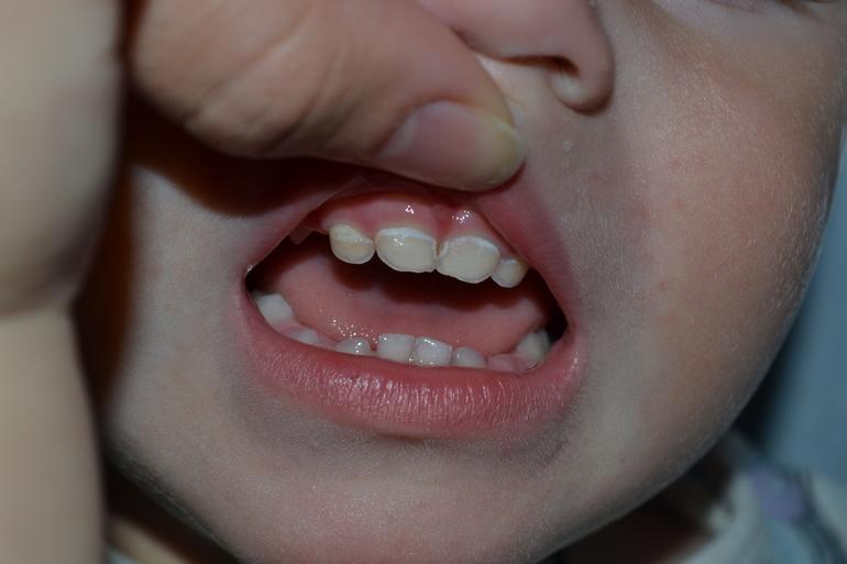 Могут ли у ребенка болеть зубы в 2 года