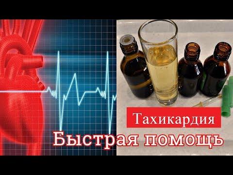Аритмия сердца - лечение и причины заболевания