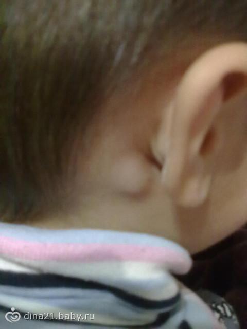Воспаление лимфоузлов за ухом - Медицинский